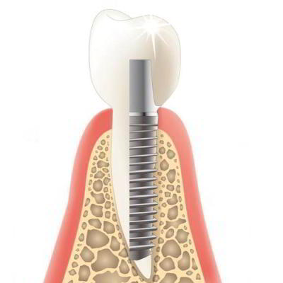 DENTS Implantate - abnehmbar