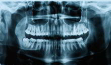 DENTS Implantate - Diagnose